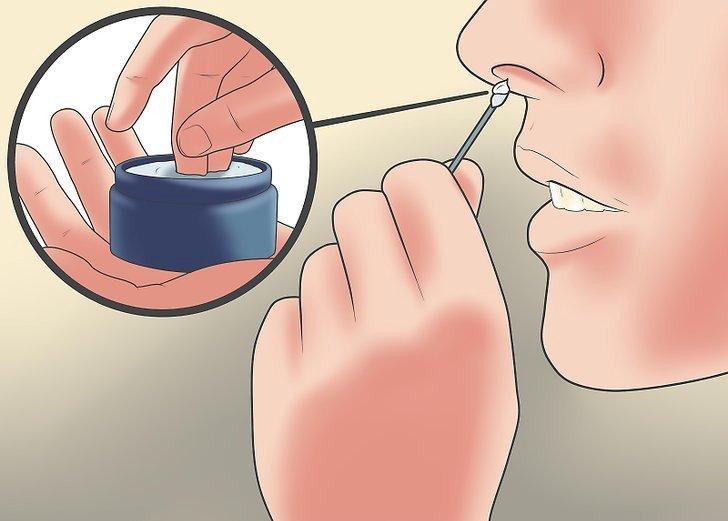 Мази от гайморита - какие средства лучше подойдут для лечения носа 2019