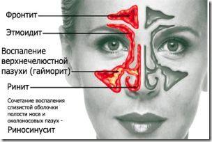 Алчность у детей старше 5 лет в Молдове — Semia.md